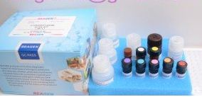 Buy Clenbuterol (feed) ELISA Test Kit