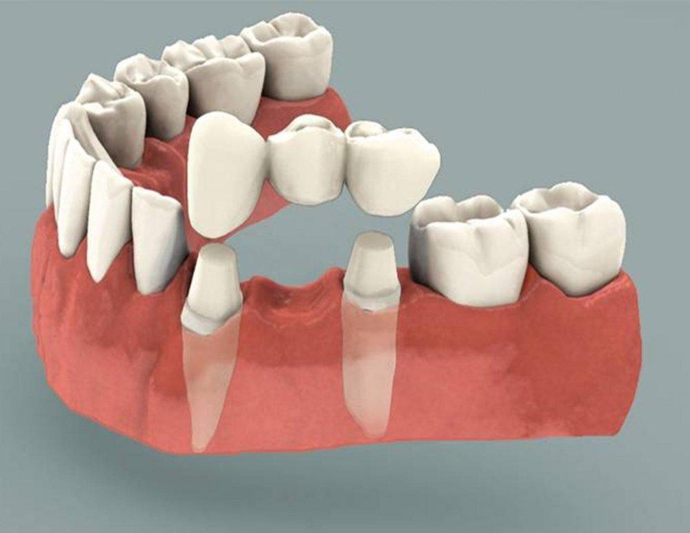 Buy Dental Bridge
