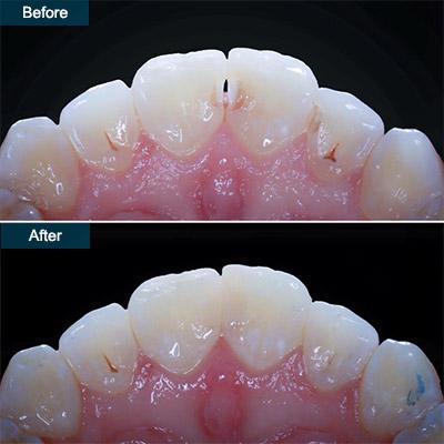 Buy Dental Bonding