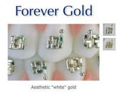 Forever Gold Cosmetic Brackets