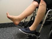 GeriLeg® The Original Leg Protector