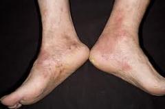 BD Foot & Leg Cream