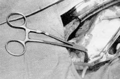 Loop Aorta CVT-Soft Jaw Aorta Clamp