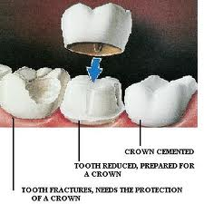 Order Dental Crown
