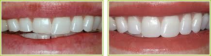 Order Dental Bonding