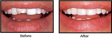Order Composite Fillings