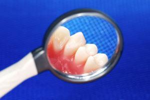 Order Periodontal/Gum Disease
