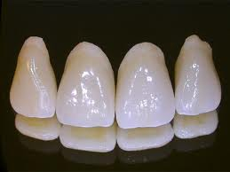Order Dental Crowns