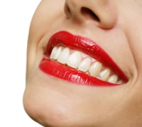 Order Tooth Whitening