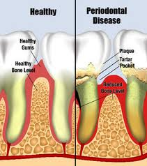 Order Periodontal Disease