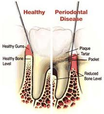 Order Treatment of Periodontal Disease