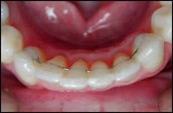 Order Lower Lingual Retainers