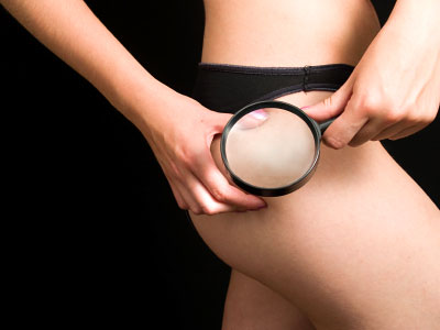 Order Chi Cellulite & Balancing Package