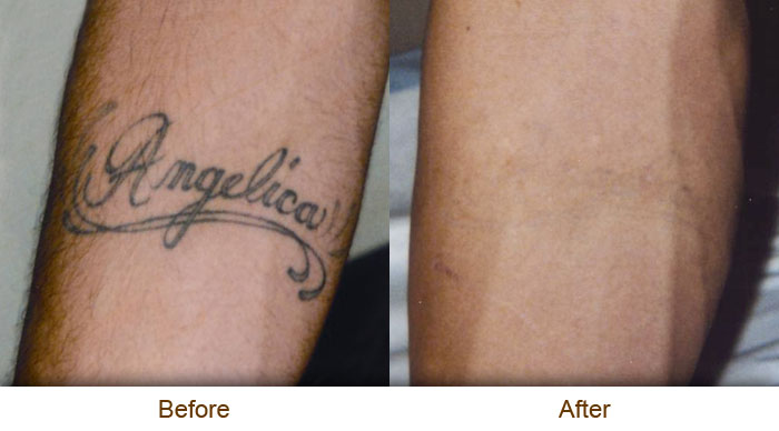 Order Laser Tattoo Removal