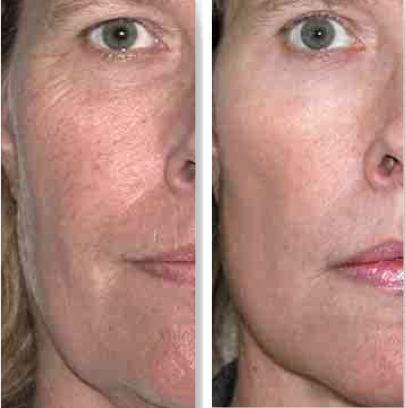 Order Dynamic Duo – Combination Aura & Lyra Laser Treatments