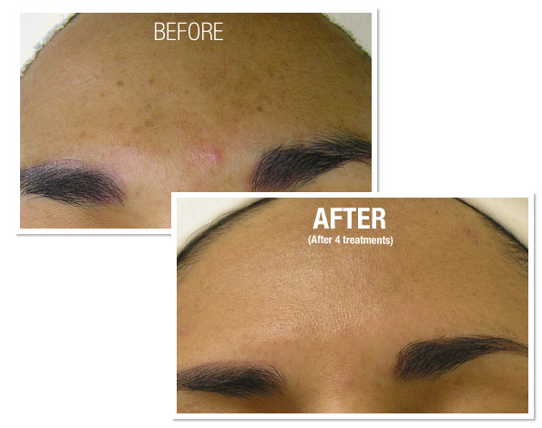 Order HydraFacial MD® Treatment