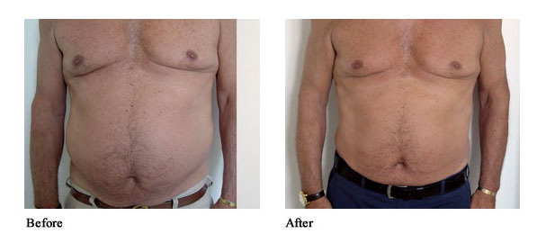 Order Body Contouring with VelaShape™ II