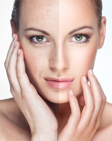 Order Chemical Peels