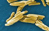 Order MYCOBACTERIUM TUBERCULOSIS (TB) VACCINE