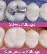 Composite vs. Silver Amalgam