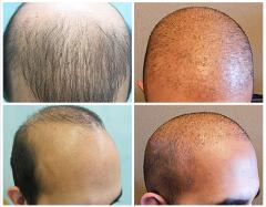 Surgical Hair Transplants