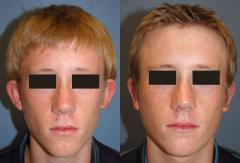 Otoplasty (Surgery of the Ears)