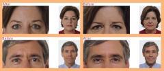 Botox® Cosmetic Treatment