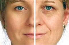 Facezyme Activator & Microdermabrasion