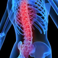 Spinal Decompression Therapy (DTS)