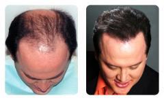 Hair Treatment Services