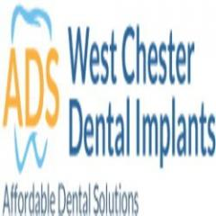 West Chester Affordable Dental Implants