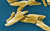 MYCOBACTERIUM TUBERCULOSIS (TB) VACCINE